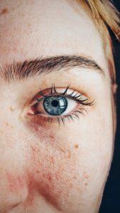 Herkkä silmänympärys ja iho